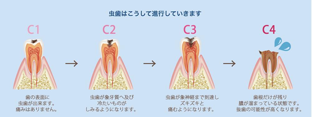 虫歯はこうして進行していきます